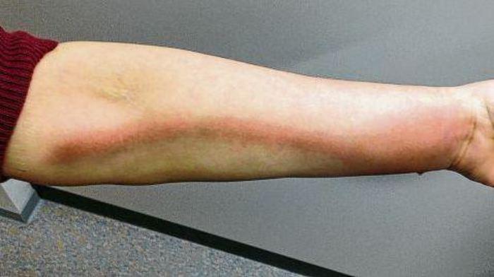 Fuß mückenstich dicker nach Insektenstich: Wann